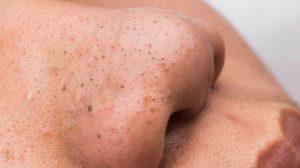 points noir sur la peau